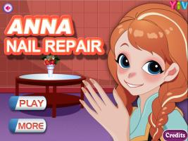 Cuide das Mãos da Anna - screenshot 1